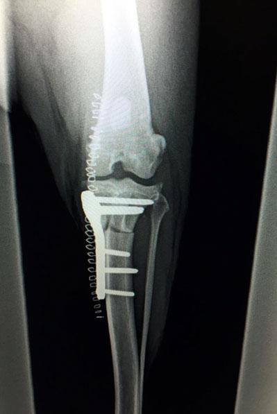 ortopedia-web